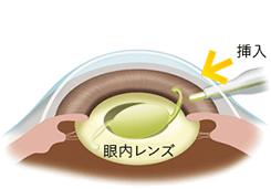 人工の水晶体(眼内レンズ)を挿入します